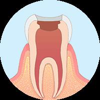 虫歯になった部分を器具を使って除去する。