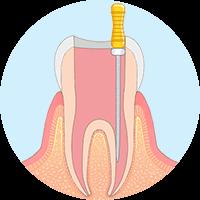 リーマーという器具を使い歯の根の感染した部分を除去し、きれいに洗浄する。