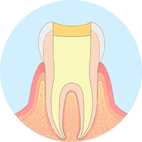 炎症が起きている根管の先まで薬を詰め、バイ菌が入らないように根管を封鎖。