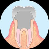 きれいになった根管に土台を入れ、人工歯を被せます。