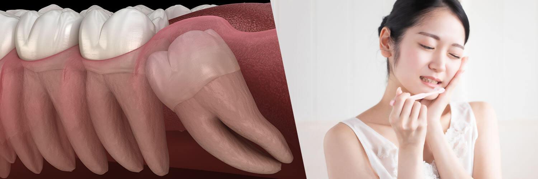 親知らずの抜歯(口腔外科)
