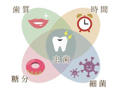 虫歯になるメカニズム