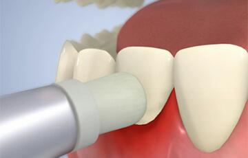 歯の表面の歯石除去