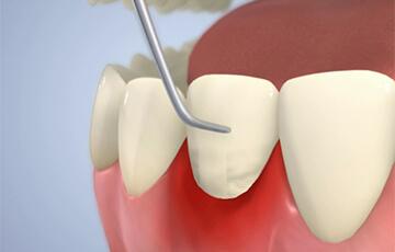 歯肉縁下の歯石除去