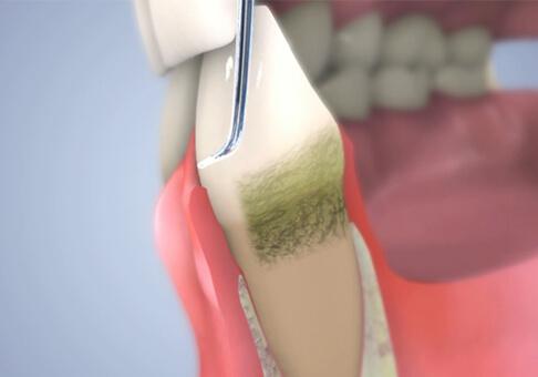 歯周ポケット掻爬術